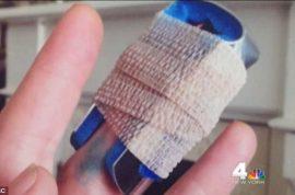 Oh really? NJ hospital charges Baer Hanusz-Rajkowski's $9000 for cut finger
