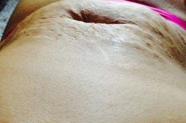 Tanis Jex-Blake, fat shamed mother posts picture of her stomach to world applause