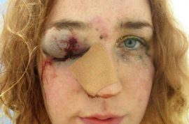 Notting Hill Carnival woman, Mary Brandon posts punched face picture after being groped
