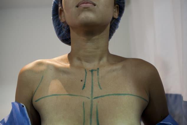 Venezuela shortage of breast implants