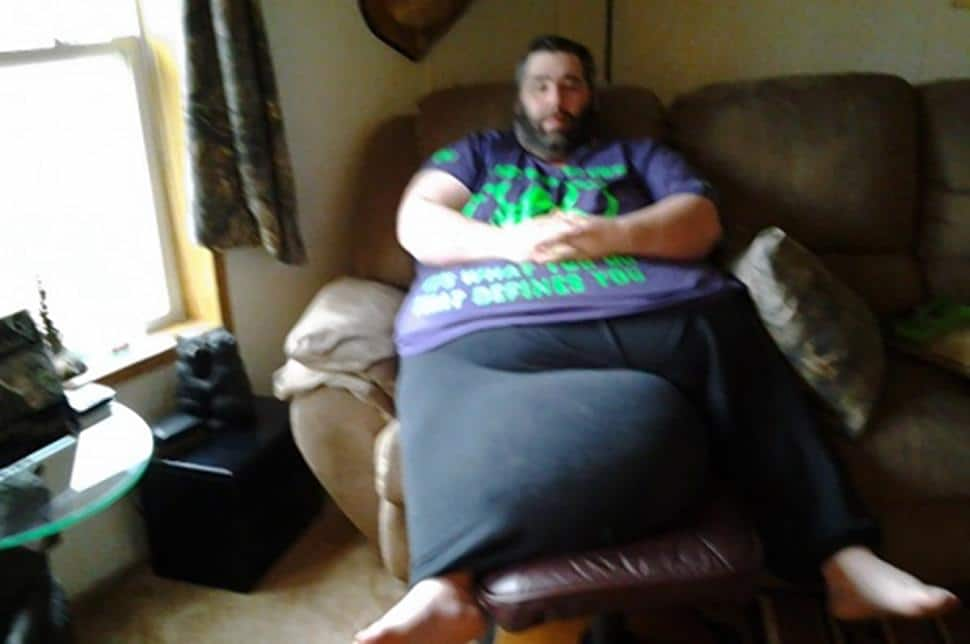 Dan Maurer has 100 pound scrotum removed