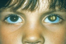 12 year old UK child goes blind cause parents were too busy to notice