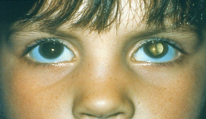 12 year old UK child goes blind cause parents were too busy