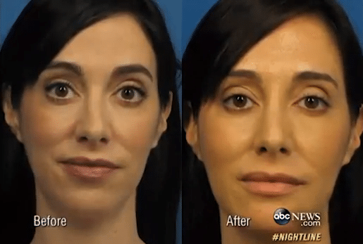 The Selfie and Cosmetic Surgery
