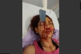 (NSFW) Brazilian woman survives kitchen knife attack to the head by boyfriend