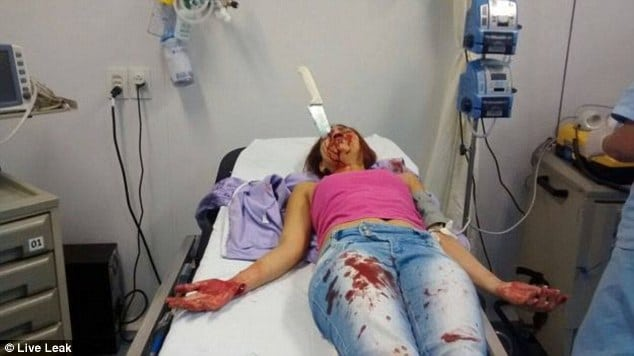 Brazilian woman survives kitchen knife attack
