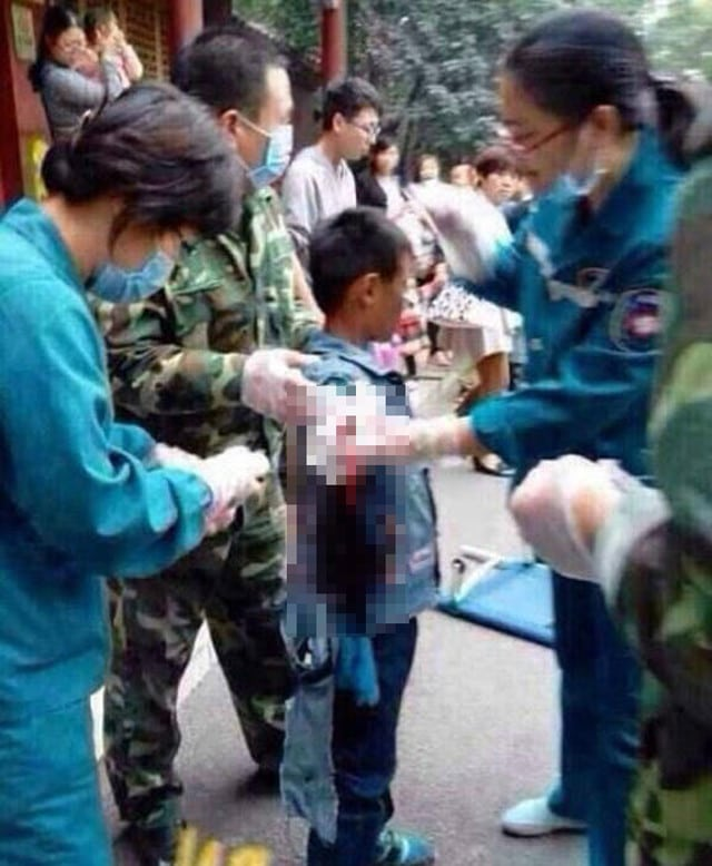 Bear bites Chinese boy's arm off