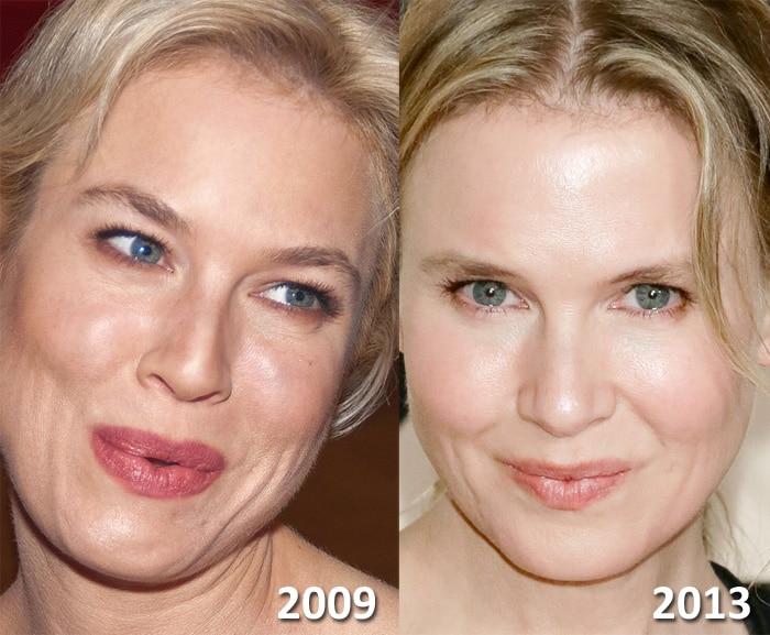 Renee Zellweger plastic surgery.