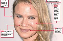 Renee Zellweger new face. Denies plastic surgery. Do you believe her?