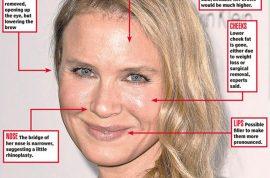 Renee Zellweger new face. Denies plastic surgery. Do you believe her?