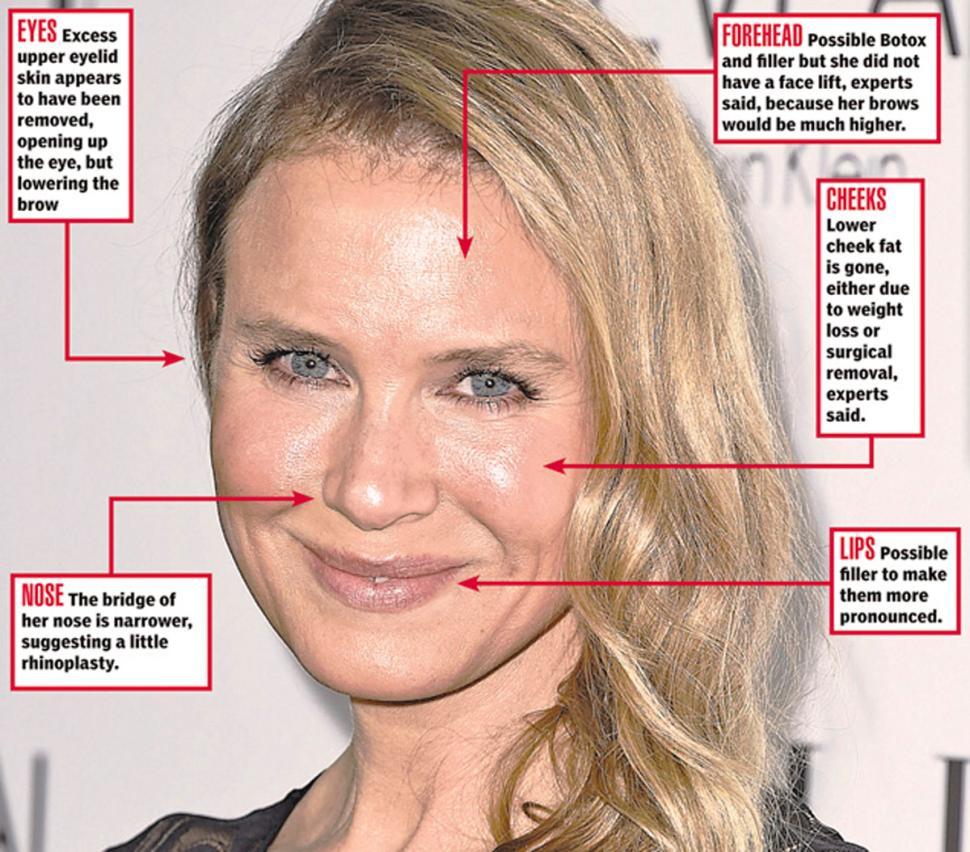 Renee Zellweger face