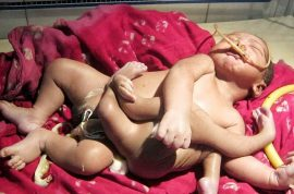 God Boy: Indian baby born with four arms and four legs. Parents overjoyed.