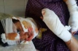 Teenage Moroccan girl forced to marry her rapist has face slashed after filing for divorce