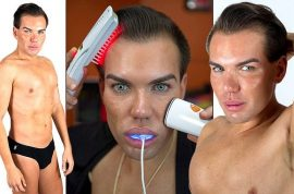 Rodrigo Alves spends $8000 on new plastic surgery to look like Ken doll.
