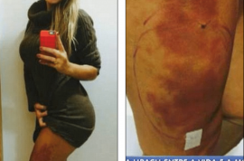 Pictures: Andressa Urach, Miss BumBum runner up fighting for her life after botched plastic surgery