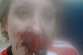 Lorena Sabio beaten by rival Argentinian Boca Junior fan. Now on the run.
