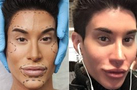 Human Ken doll risks blindness in new plastic surgery: 'I love pushing the limit'