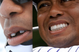 Tiger Woods without his fake front tooth. Is Elin Nordegren to blame?
