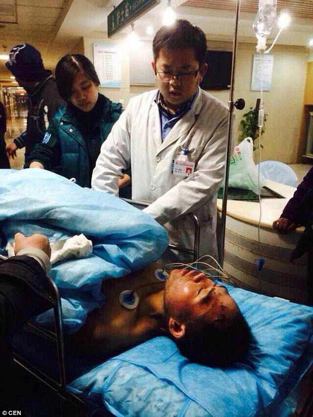 Chinese construction worker breaks all four limbs
