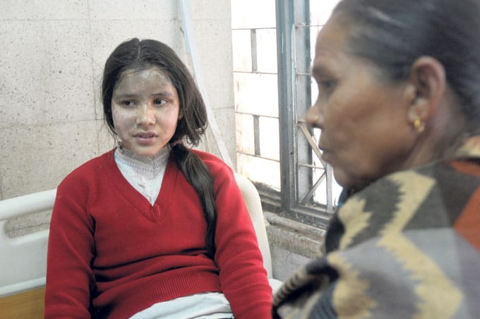 Nepalese schoolgirls acid attack