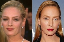 Uma Thurman plastic surgery: Damned if she does, damned if she doesn't.