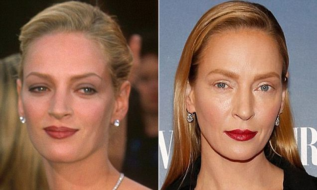 Uma Thurman plastic surgery