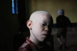 Tanzanian albino boy has hand chopped off by witchdoctors. Seven arrested.