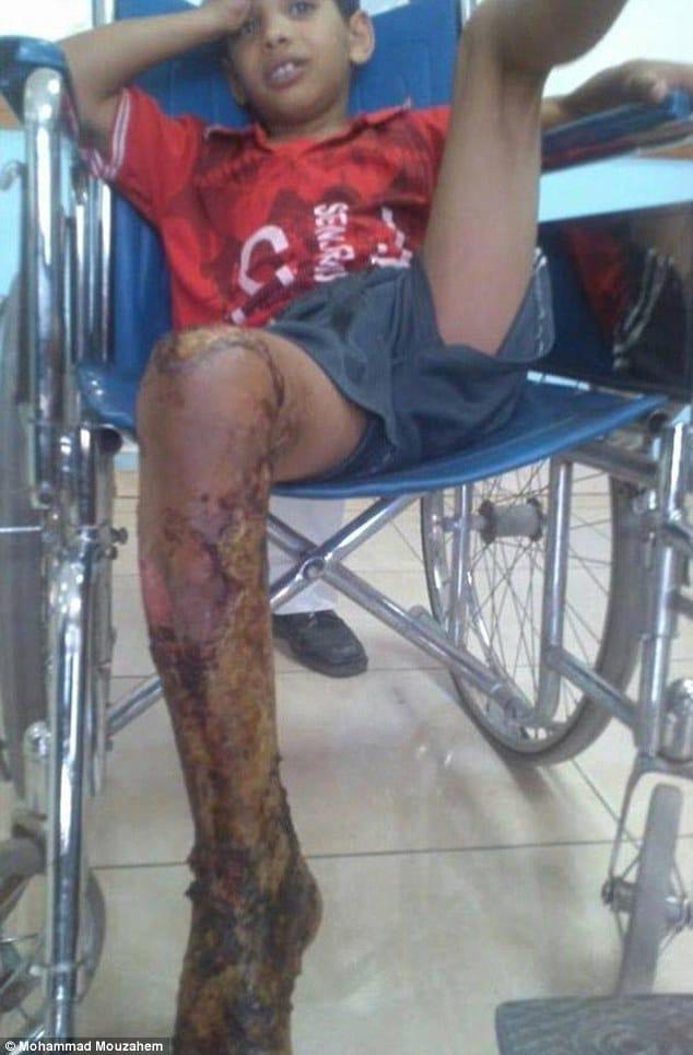 Yemeni boy locked in cage and set alight