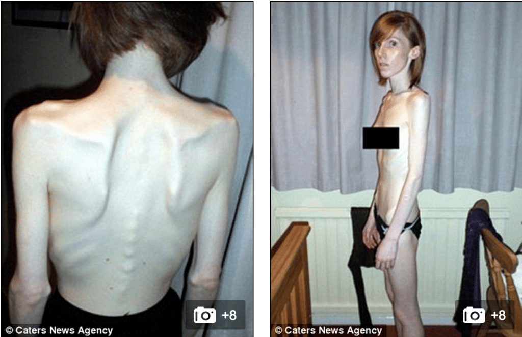 Beth Hall anorexia