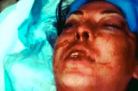 Megan Sheehan model face destroyed. Did cops go too far?