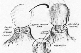 Human head transplant: Why did Valery Spiridonov volunteer?