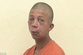 Raymond Frolander beaten up by father gets 25 years jail for sexually abusing son.