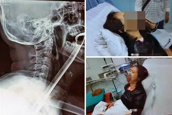 Chinese woman swallows kitchen spatula