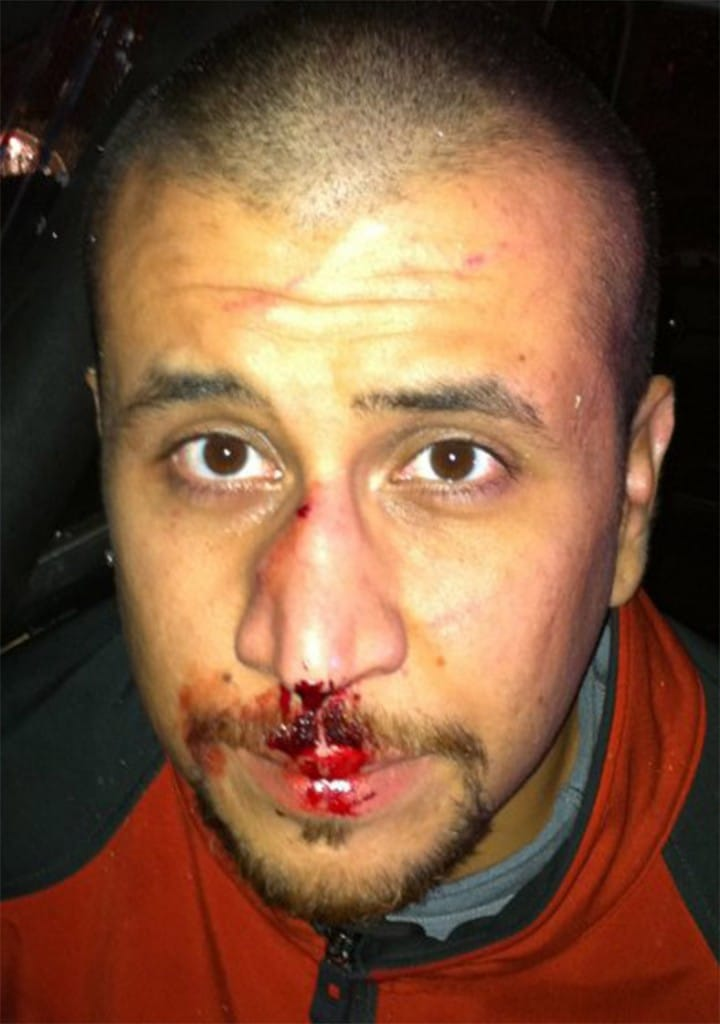 George Zimmerman shot in face