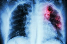 Woman with XDR-TB tuberculosis may have infected hundreds. How did she pass customs?