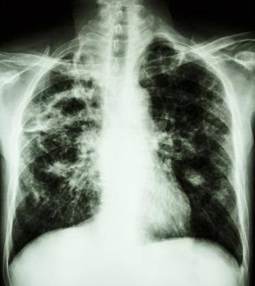 XDR-TB tuberculosis