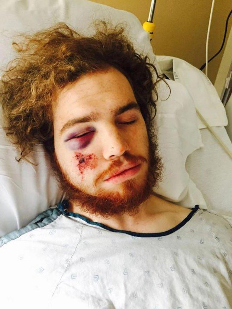 Mackenzie Jensen, Minnesota cyclist battered