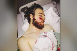 Why was Mackenzie Jensen, Minnesota cyclist battered in random attack?