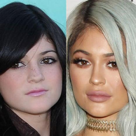 Kylie Jenner beauty regiment plastic surgery