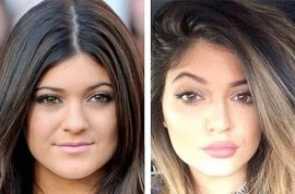Kylie Jenner fake beauty regiment glorified. Why doesn't she admit plastic surgery?