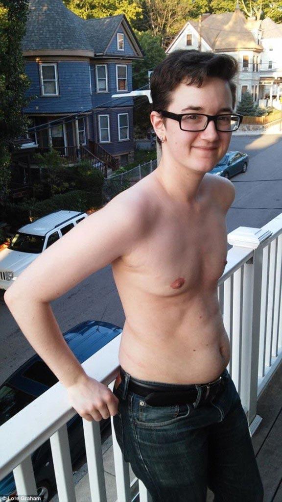 Lore Graham remove her breasts and uterus