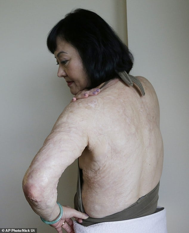 Kim Phuc, Napalm girl starts laser treatment