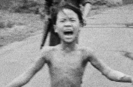 'I have chronic pain,' Kim Phuc, Napalm girl starts laser treatment 43 years after being burnt