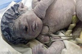 Egyptian Cyclops baby born with one eye after mom exposed to radiation