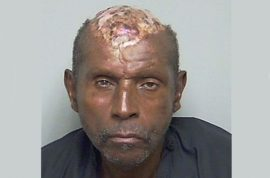 Tommie Bennett, man with no scalp caught robbing truck and other surprises…