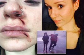 Why was Amanda Morris slashed in face during random Manhattan attack?