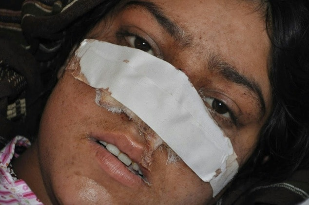 Reza Gul Afghan woman nose cut off