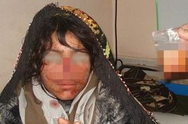 Reza Gul Afghan woman has nose cut off by husband