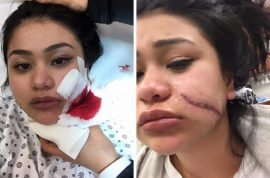 Paula Delos Santos slashed across face in new NYC attack