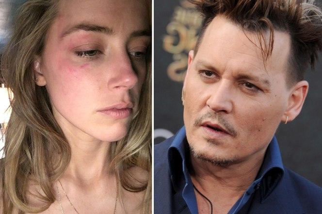 Amber Heard black eye